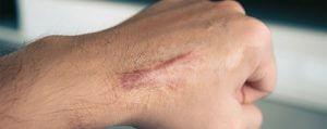 درمان سوختگی و اسکار با روغن خر
